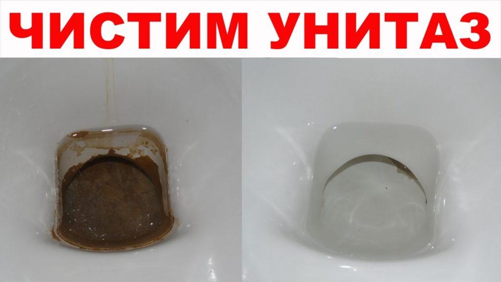 Как очистить унитаз от мочевого камня и известкового налета