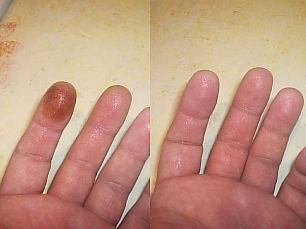 Как отмыть марганцовку с кожи рук в домашних условиях